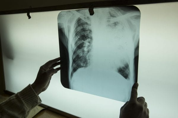 x ray documentary photography in color by Hugh Brown