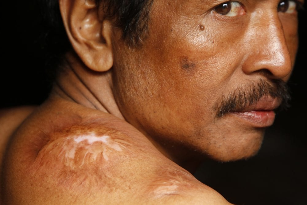 portrait with scars documentary photography in color by Hugh Brown